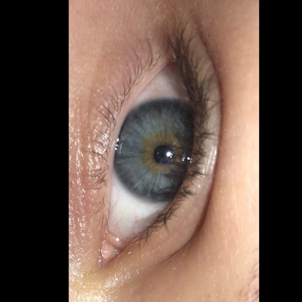 zeig mal bitte deine Augen