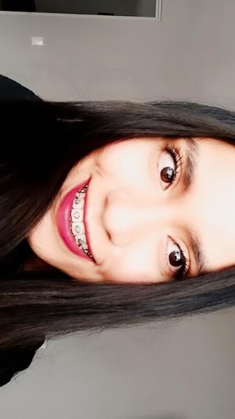 Me encanta tu preciosa sonrisa con brackets
