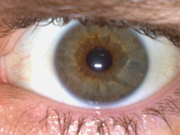 Podělíš se o fotku tvých očí
