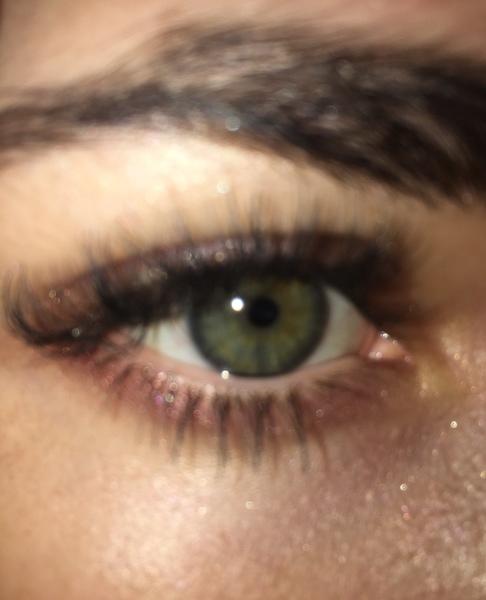 Разве у тебя карии глаза