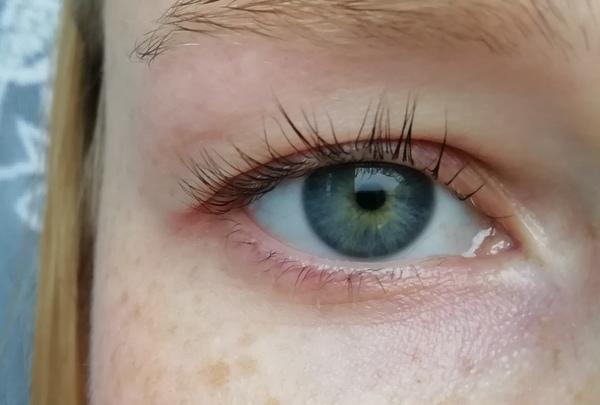 Fotku očí