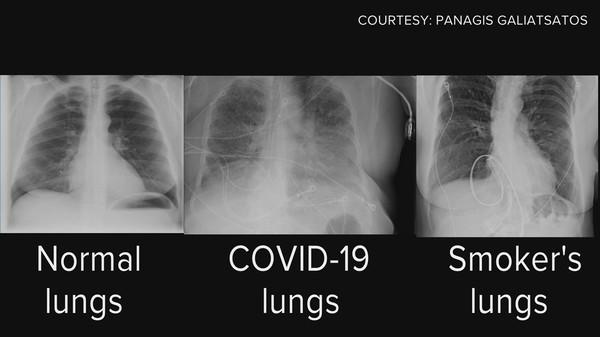 تصوير اشعاعي لرئة مصاب بكورونا واخر مدخن واخر سليم خطر فايروس كورونا على